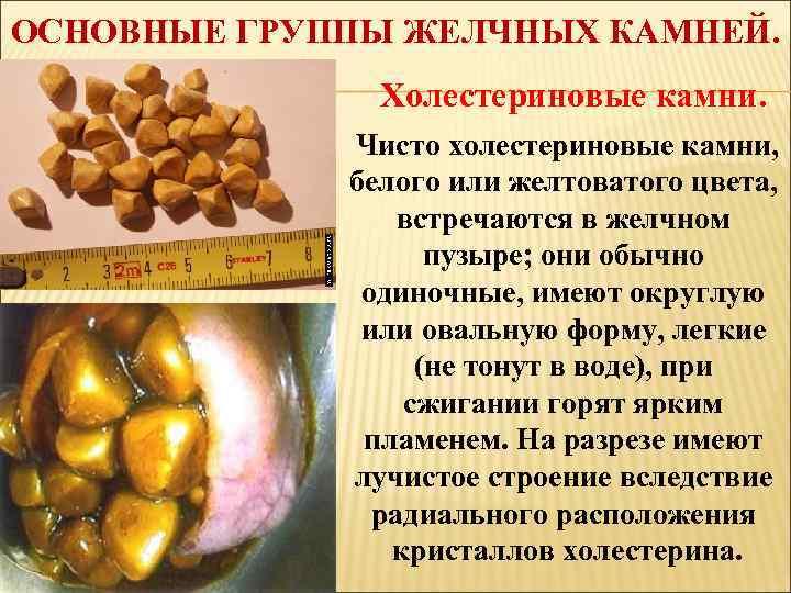 Диета При Холестериновых Камнях В Почках.