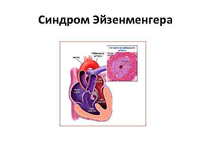 Синдром Эйзенменгера