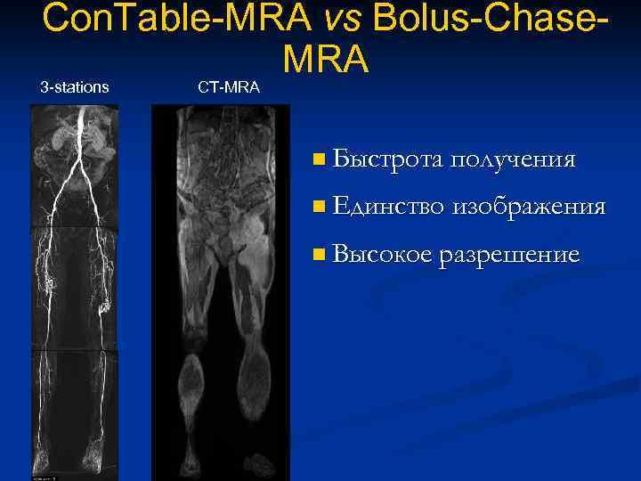 Con. Table-MRA vs Bolus-Chase. MRA 3 -stations CT-MRA n Быстрота получения n Единство изображения