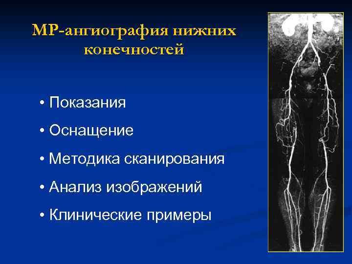МР-ангиография нижних конечностей • Показания • Оснащение • Методика сканирования • Анализ изображений •