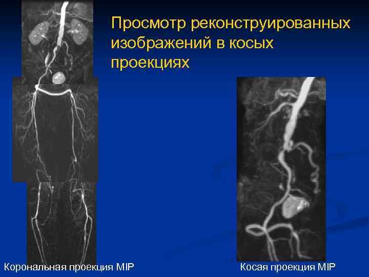 Просмотр реконструированных изображений в косых проекциях Корональная проекция MIP Косая проекция MIP