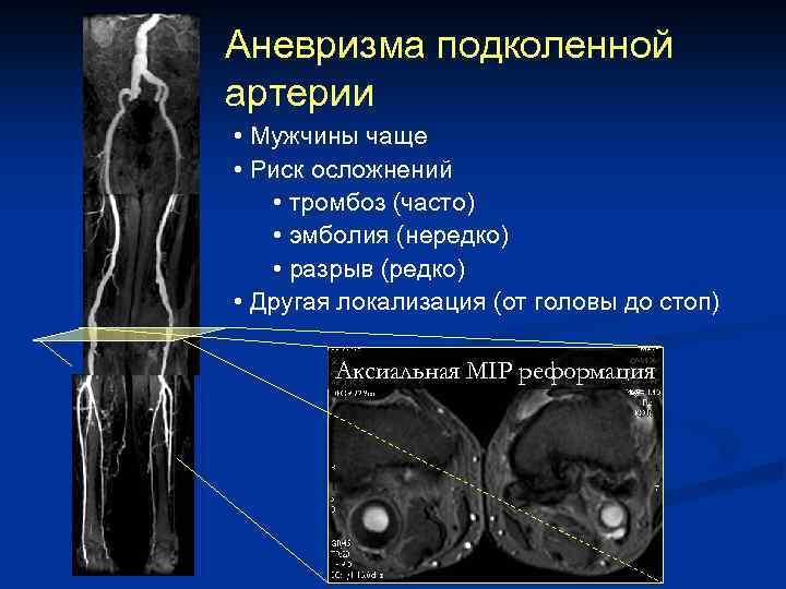 Аневризма подколенной артерии • Мужчины чаще • Риск осложнений • тромбоз (часто) • эмболия