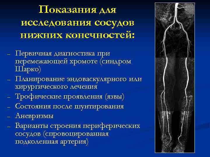 Показания для исследования сосудов нижних конечностей: – – – Первичная диагностика при перемежающей хромоте