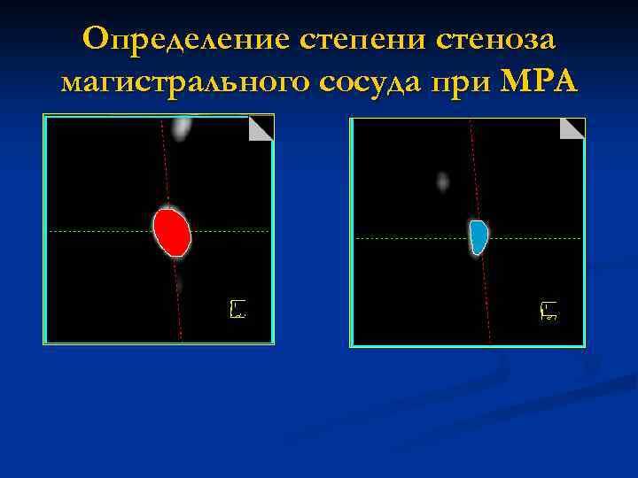Определение степени стеноза магистрального сосуда при МРА