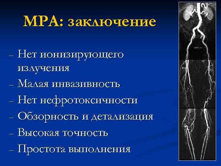 МРА: заключение Нет ионизирующего излучения – Малая инвазивность – Нет нефротоксичности – Обзорность и