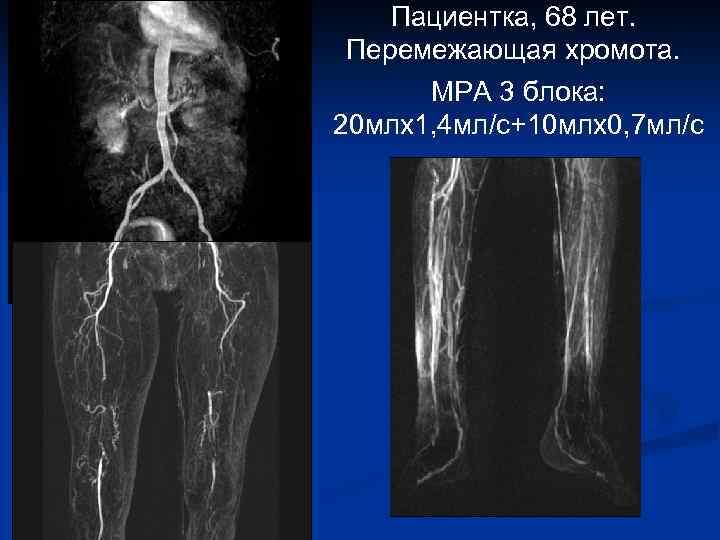 Пациентка, 68 лет. Перемежающая хромота. МРА 3 блока: 20 млх1, 4 мл/с+10 млх0, 7