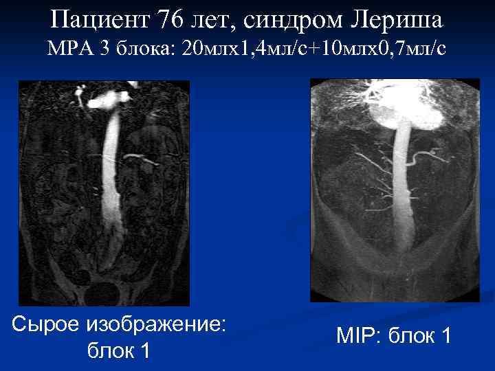 Пациент 76 лет, синдром Лериша МРА 3 блока: 20 млх1, 4 мл/с+10 млх0, 7