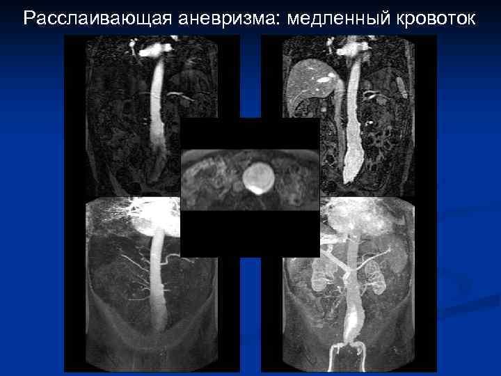 Расслаивающая аневризма: медленный кровоток