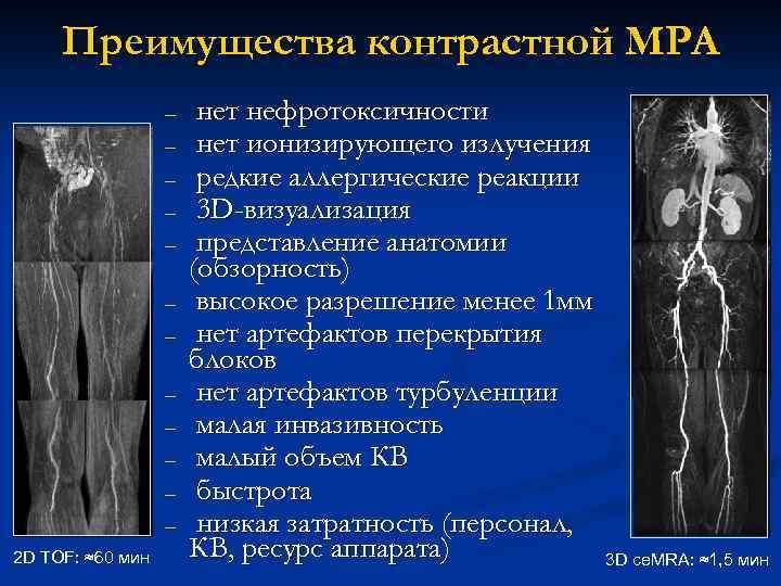 Преимущества контрастной МРА – – – 2 D TOF: ≈60 мин нет нефротоксичности нет