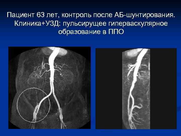 Пациент 63 лет, контроль после АБ-шунтирования. Клиника+УЗД: пульсирущее гиперваскулярное образование в ППО