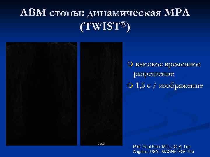 АВМ стопы: динамическая МРА (TWIST®) высокое временное разрешение m 1, 5 с / изображение