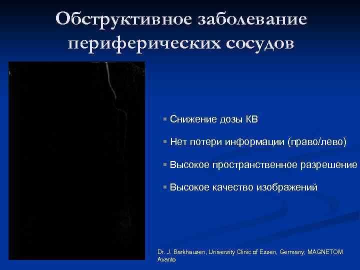 Обструктивное заболевание периферических сосудов § Снижение дозы КВ § Нет потери информации (право/лево) §