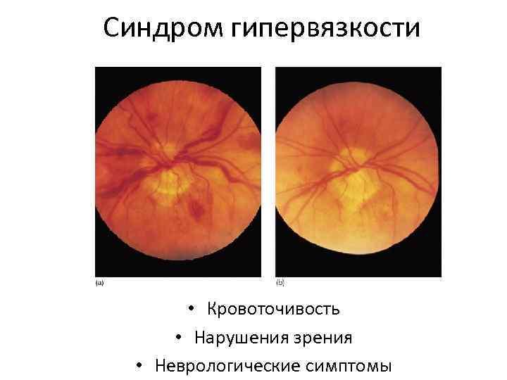 Синдром гипервязкости • Кровоточивость • Нарушения зрения • Неврологические симптомы