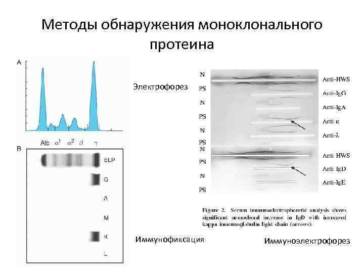 Методы обнаружения моноклонального протеина Электрофорез Иммунофиксация Иммуноэлектрофорез
