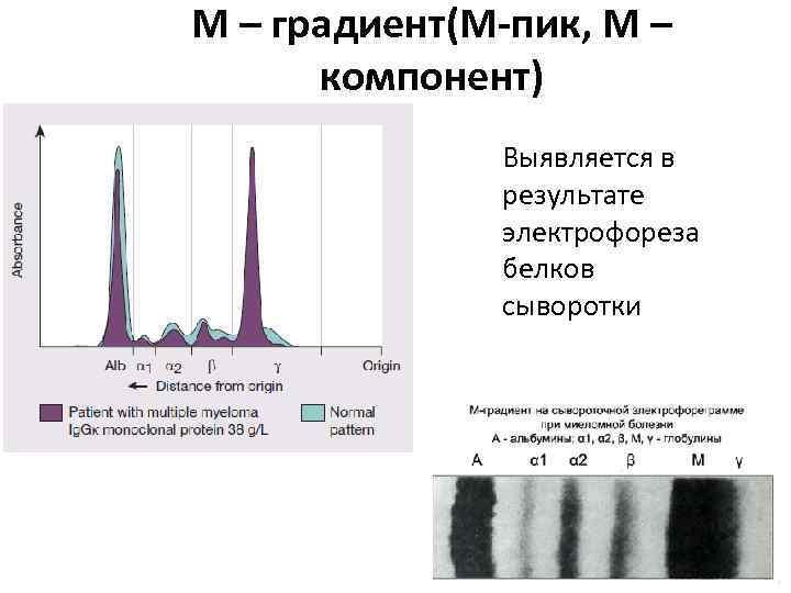 М – градиент(М-пик, М – компонент) Выявляется в результате электрофореза белков сыворотки