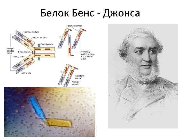 Белок Бенс - Джонса
