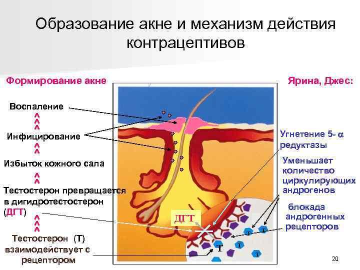 Образование акне и механизм действия контрацептивов Формирование акне Ярина, Джес: Воспаление ^ ^ ^