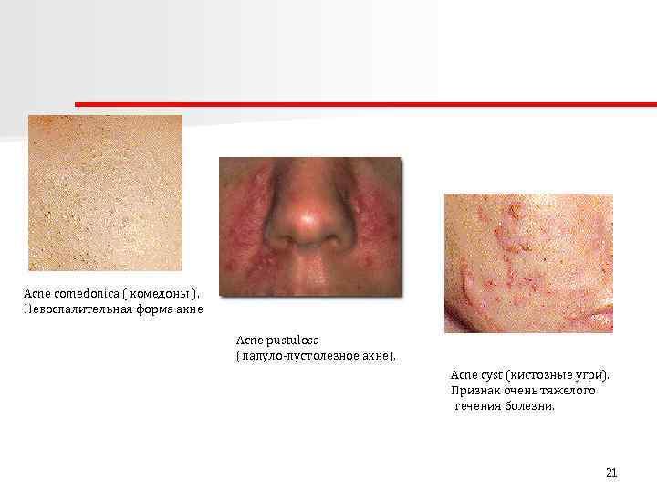 Acne comedonica ( комедоны ). Невоспалительная форма акне Acne pustulosa (папуло-пустолезное акне). Acne cyst