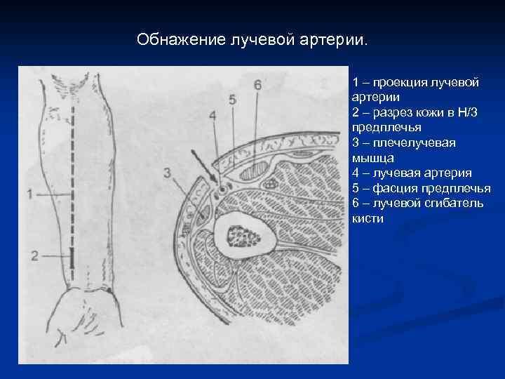 Обнажение лучевой артерии. 1 – проекция лучевой артерии 2 – разрез кожи в Н/3