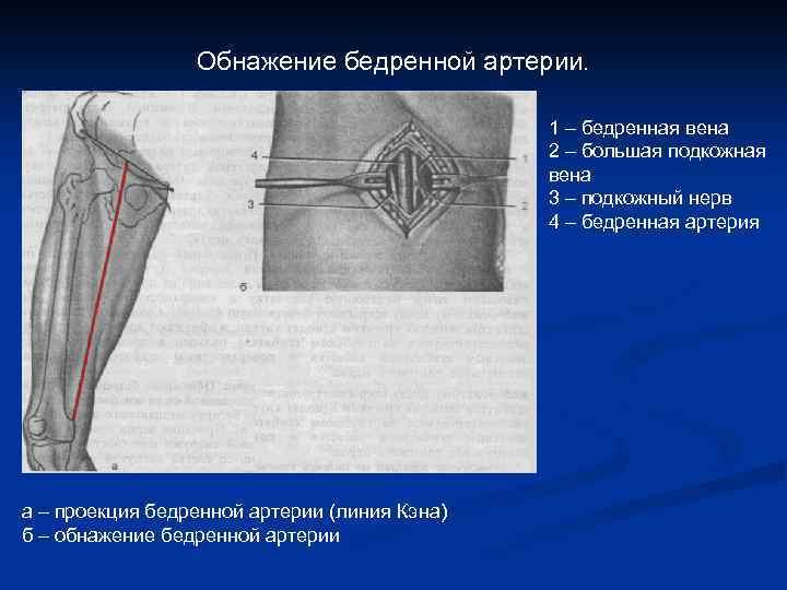 Обнажение бедренной артерии. 1 – бедренная вена 2 – большая подкожная вена 3 –