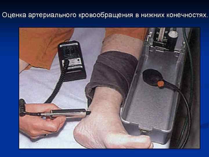 Оценка артериального кровообращения в нижних конечностях.