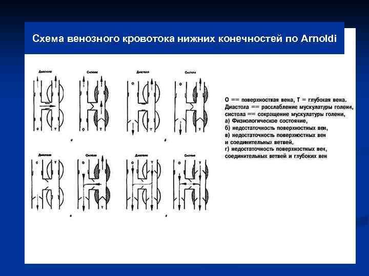 Схема венозного кровотока нижних конечностей по Arnoldi