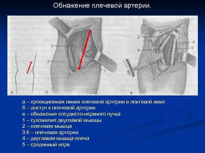 Обнажение плечевой артерии. а – проекционная линия плечевой артерии в локтевой ямке б –