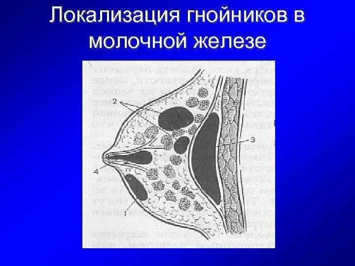Локализация гнойников в молочной железе