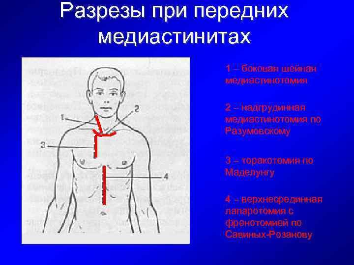 Разрезы при передних медиастинитах 1 – боковая шейная медиастинотомия 2 – надгрудинная медиастинотомия по