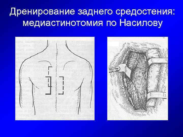 Дренирование заднего средостения: медиастинотомия по Насилову