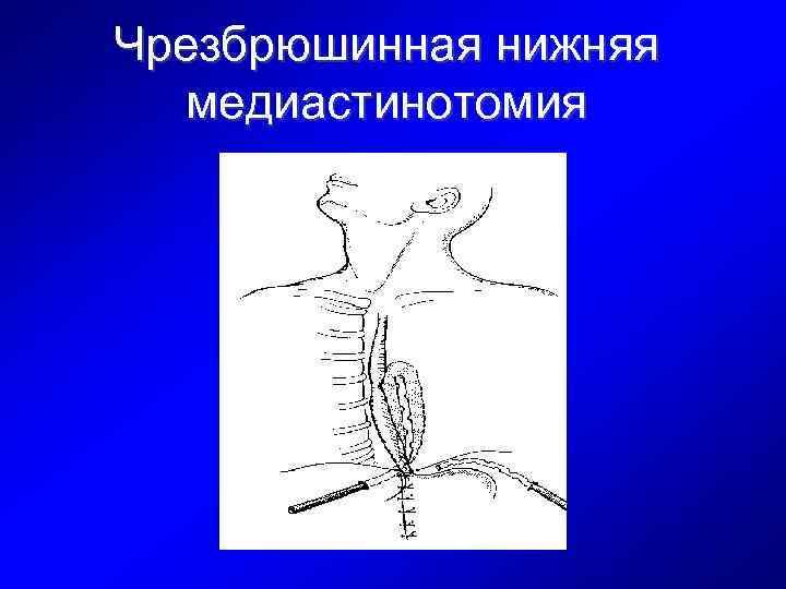 Чрезбрюшинная нижняя медиастинотомия