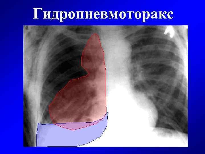 Гидропневмоторакс