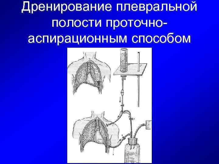 Дренирование плевральной полости проточноаспирационным способом