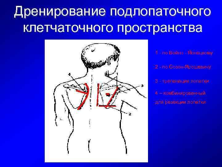Дренирование подлопаточного клетчаточного пространства 1 - по Войно - Яснецкому 2 - по Созон-Ярошевичу