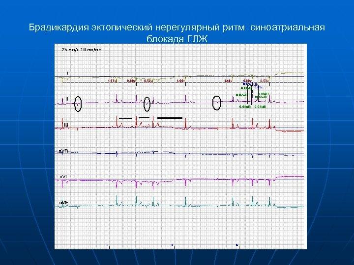 Брадикардия эктопический нерегулярный ритм синоатриальная блокада ГЛЖ