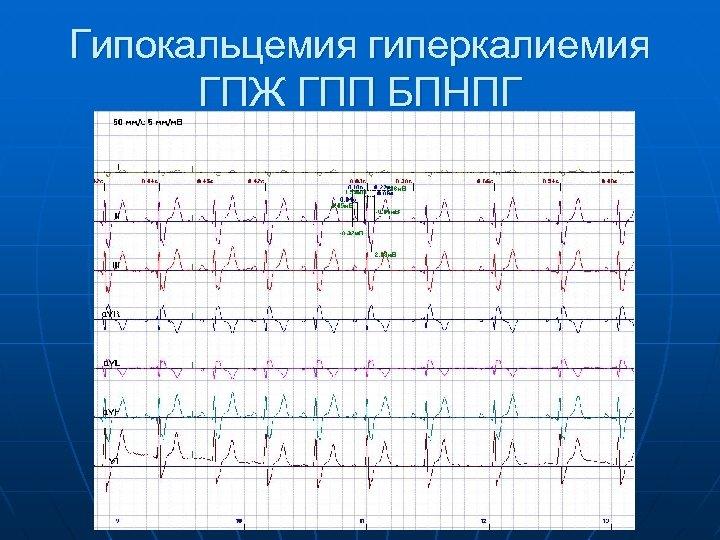 Гипокальцемия гиперкалиемия ГПЖ ГПП БПНПГ