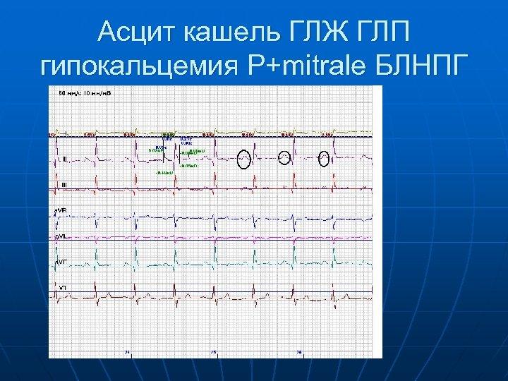 Асцит кашель ГЛЖ ГЛП гипокальцемия P+mitrale БЛНПГ