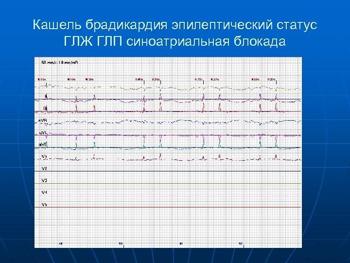 Кашель брадикардия эпилептический статус ГЛЖ ГЛП синоатриальная блокада