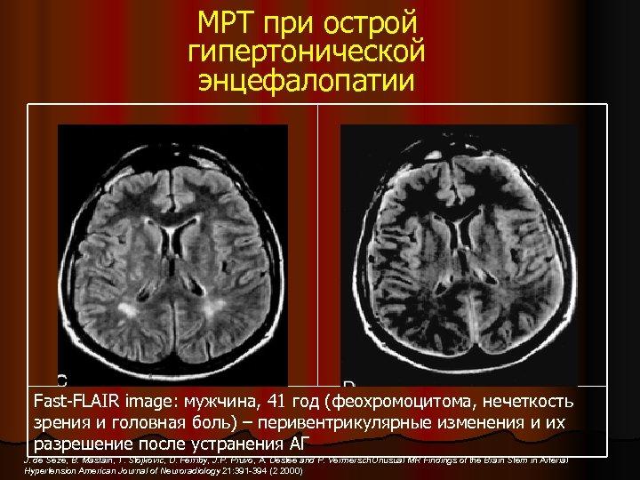 Острая гипертоническая энцефалопатия головного мозга