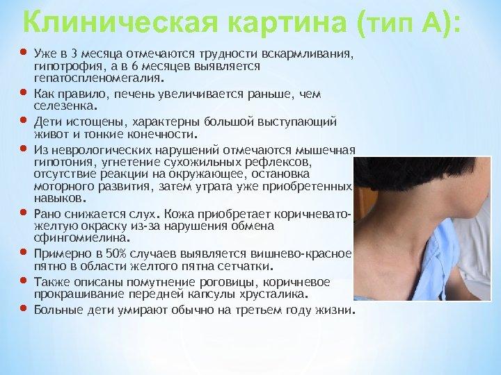 Клиническая картина (тип А): Уже в 3 месяца отмечаются трудности вскармливания, гипотрофия, а в