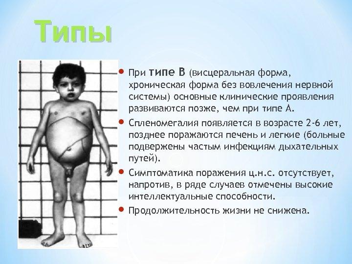 Типы При типе В (висцеральная форма, хроническая форма без вовлечения нервной системы) основные клинические
