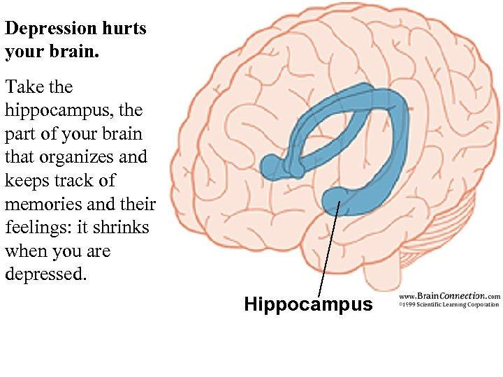 Depression hurts your brain. Take the hippocampus, the part of your brain that organizes