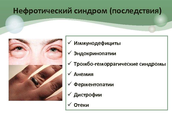Нефротический синдром (последствия) ü Иммунодефициты ü Эндокринопатии ü Тромбо-геморрагические синдромы ü Анемия ü Ферментопатии