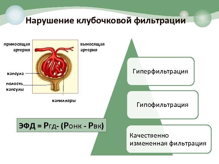 Нарушение клубочковой фильтрации приносящая артерия выносящая артерия Гиперфильтрация капсула полость капсулы капилляры ЭФД =
