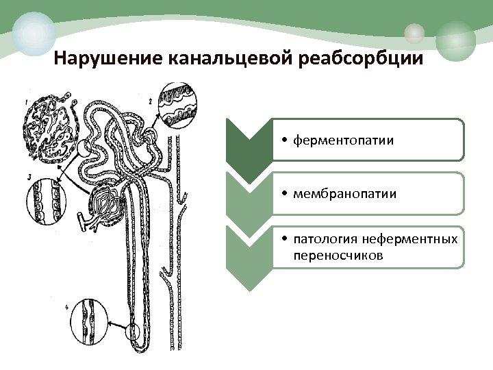 Нарушение канальцевой реабсорбции • ферментопатии • мембранопатии • патология неферментных переносчиков
