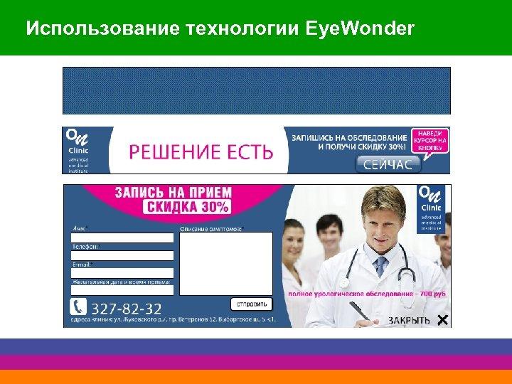 Использование технологии Eye. Wonder