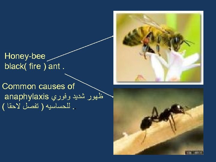 Honey-bee black( fire ) ant. Common causes of anaphylaxis ﻇﻬﻮﺭ ﺷﺪﻳﺪ ﻭﻓﻮﺭﻱ ( .