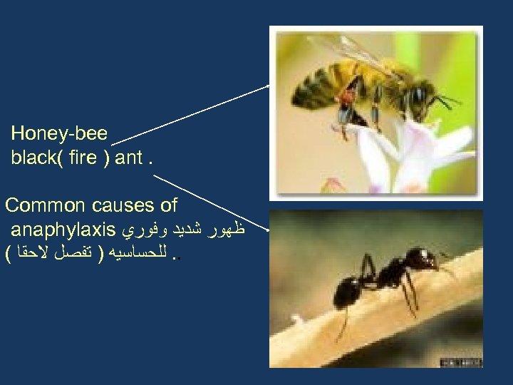 Honey-bee black( fire ) ant. Common causes of anaphylaxis ﻇﻬﻮﺭ ﺷﺪﻳﺪ ﻭﻓﻮﺭﻱ ( .