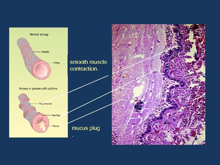 smooth muscle contraction. mucus plug.