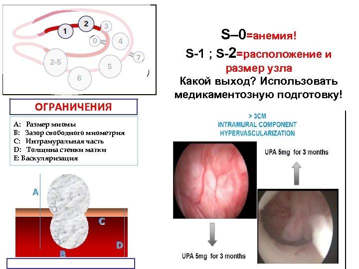 S– 0=анемия! S-1 ; S-2=расположение и ) ОГРАНИЧЕНИЯ А: Размер миомы В: Зазор свободного